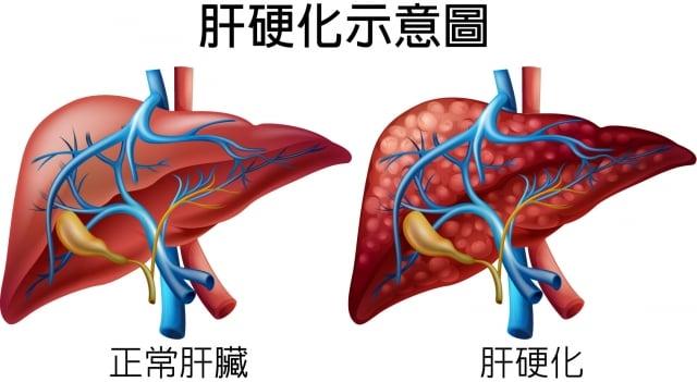 肝硬化(123RF)