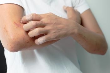 如何治療蕁麻疹?