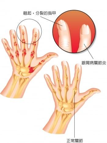 乾癬性關節炎 關節會變形