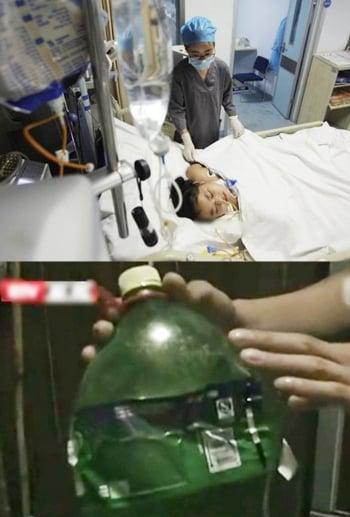 陝女童飲自釀果汁 高壓氣體傷食道