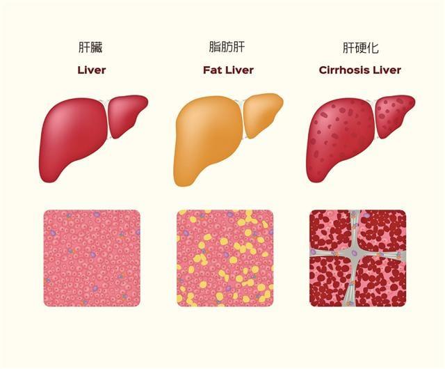 當飲食攝取的脂肪過多到人體無法處理時,肝臟便會漸漸積聚脂肪,若脂肪占肝臟5% 以上,便是脂肪肝。(Fotolia)