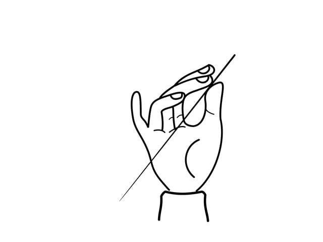 中醫治療這種手部疼痛是在病灶處尋找疼痛點或筋結 點,針灸後都能立即得到明顯改善的效果。(Fotolia)