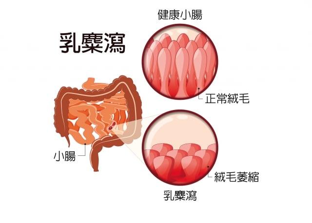當小腸絨毛長期被破壞,原本緊密結合的腸細胞就出現縫隙了,腸道間不 再是正常的茂密狀態,中間會出現各種小小的縫隙,形成「腸漏」現象。(123RF)