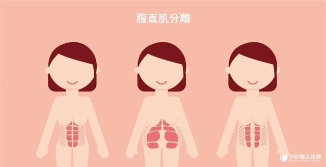產後腹部除了鬆弛問題,還有腹直肌分離的情形。(業者提供)