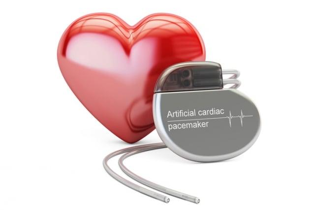 標準的節律器帶有1或2條導線配合產生電流的電池,可用來加速緩慢的心跳。( Fotolia)