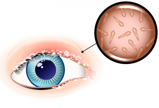 早晨起床發現睫毛根部有類似頭皮屑的白色乾性分泌物,應盡早到眼科進行檢查。(Fotolia)