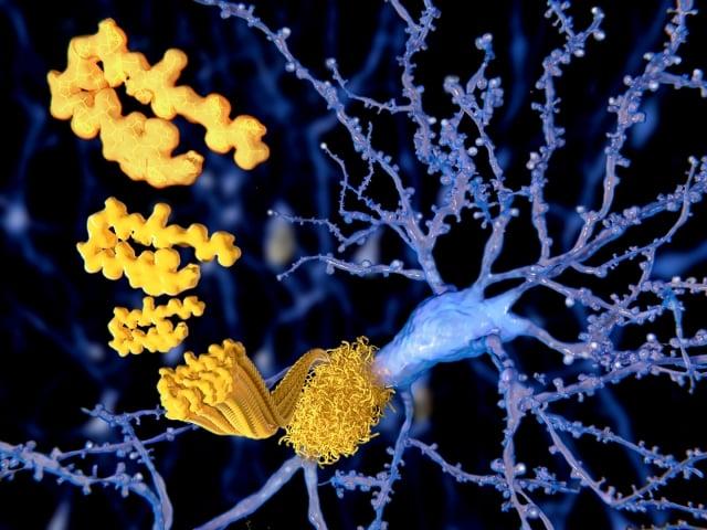睡眠不足影響大腦的清潔排除廢物功能,更可能與神經系統疾病有關。(Fotolia)