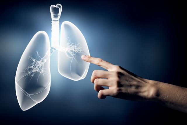 立體定位放射線治療(SBRT)主要針對體積較小的腫瘤,藉由精準病灶定位搭配呼吸調控技術,有效破壞癌細胞,同時避免傷害周圍正常組織,提高治療效果。(123RF)