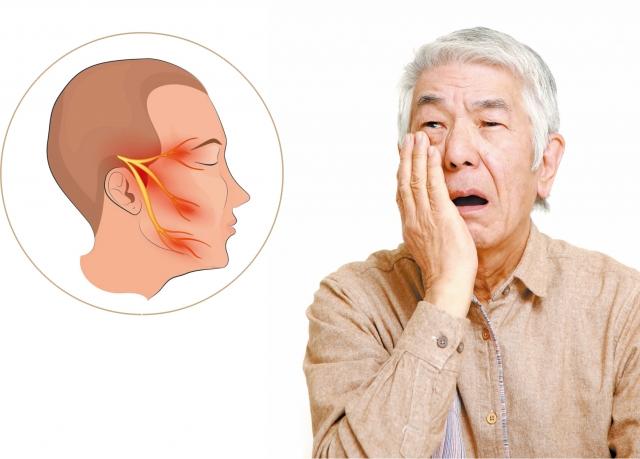 三叉神經痛。(123RF_大紀元合成圖)