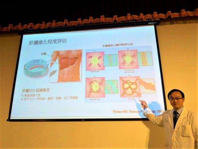 消化醫學中心醫師王鴻偉強調,肝纖維化的可逆機制在於「有無治療」。(記者黃玉燕/攝影)