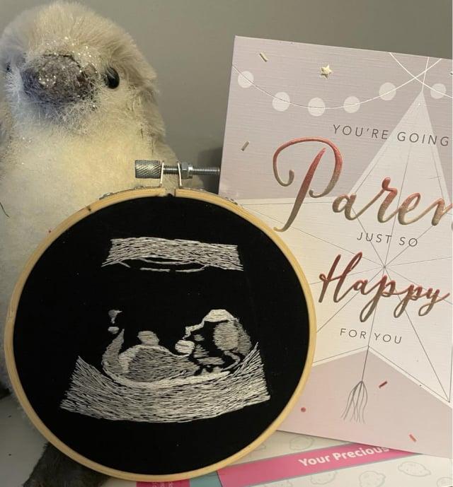 妻子艾瑪在好朋友的幫助下,將寶寶的超聲波掃描製成一幅刺繡,讓失明的丈夫內森以觸感體驗新手爸爸的喜悅。(艾瑪和內森提供)