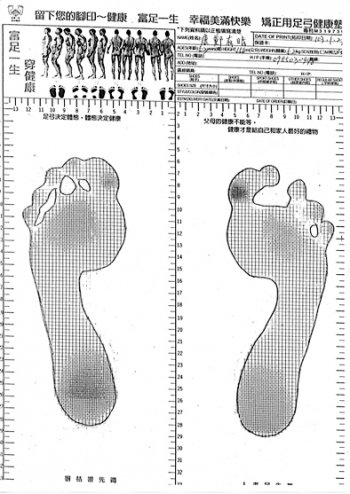 康鄭有晴穿矯正足弓鞋3個月。(富足生醫提供)