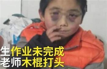 陸童未完成功課 老師棍棒暴打成「熊貓眼」