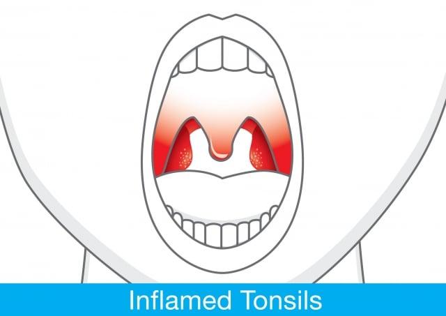 喉壁紅腫厲害,連水都難以吞下。(Fotolia)