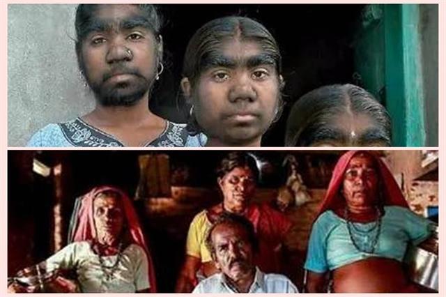 在印度馬德拉斯邦班加羅爾城南部的一個村莊,生活著200多名村民,無論男女老少長相都是一個模樣,這一神奇現象,至今仍是現代科學難解之謎。(網路圖片)