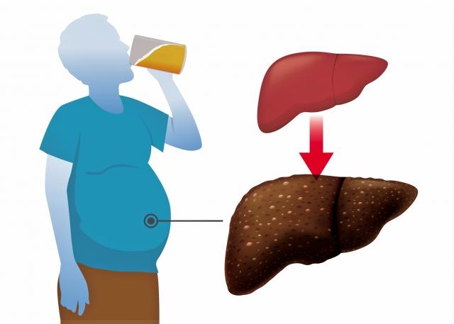 所有造成肝硬化的因素都會增加肝癌發病風險,酒精就是一個。(Fotolia)