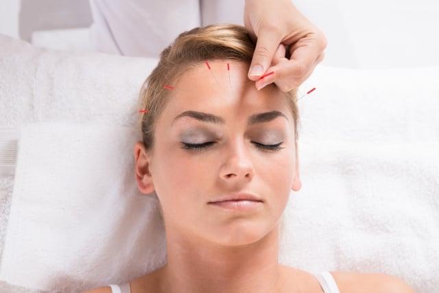 針灸除皺是以中醫經絡學說為基礎,經由穴位刺激,促進皮膚的新陳代謝、改善皮膚的營養供給與調節皮脂腺的分泌,進而達到消除臉部皺紋、避免皮膚鬆弛的目的。(Fotolia)