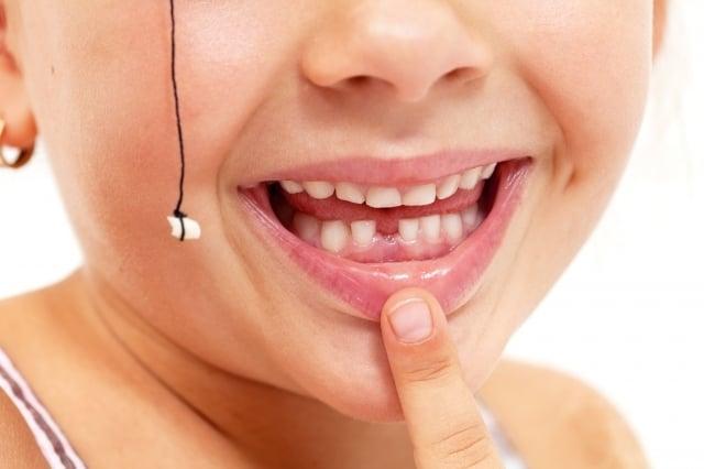 印度北方城市賈姆穆(Jammu)的一個家庭擁有「神秘藥水」,它可用來快速拔牙,既不痛也不出血。(123RF)