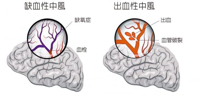 偏頭痛,是人們忽略的一個腦中風危險因素,而偏頭痛和腦中風的關係研究由來已久。( Fotolia)