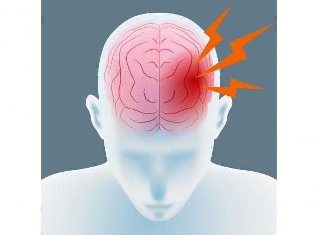 醫生檢查之後說是頭頂大腦梗塞,需要立刻住院。(Fotolia)