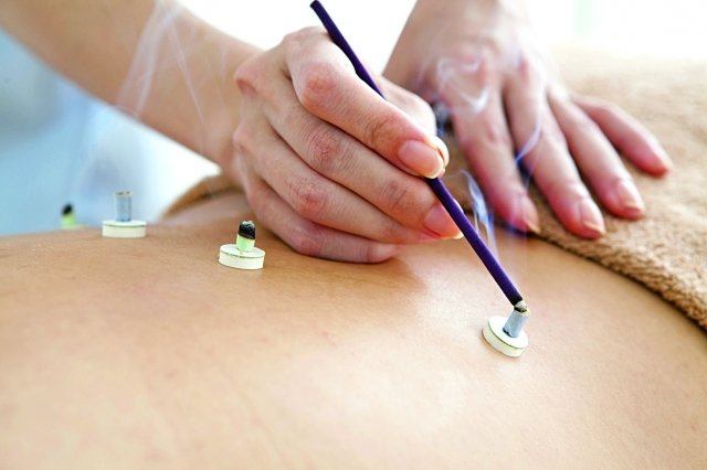 灸,是在穴位處燃燒艾草而揮發出的精油刺激,令穴位神經活性被激盪,達到治病的效果。(Fotolia)