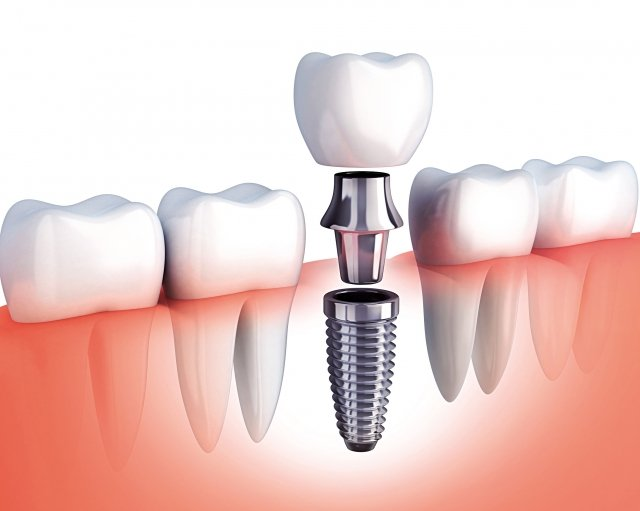 根據文獻統計,植牙成功率約95%~98%,但真正成功與否取決於術後照顧。(Fotolia)