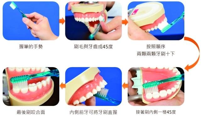 貝氏刷牙法。(醫師董醒任提供)