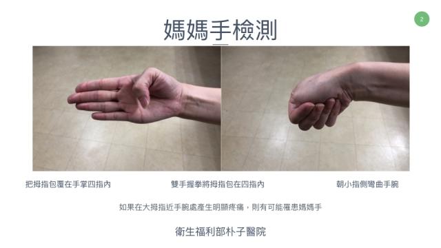 「媽媽手」的檢測方法。(朴子醫院提供)