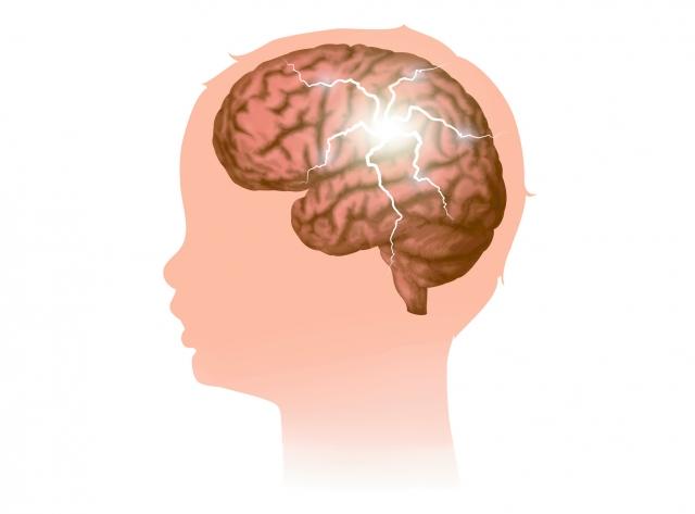 癲癇就是因為腦細胞不正常放電,導致發作症狀反覆發生。(Fotolia)