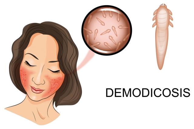 酒糟是一種很難纏的皮膚炎,隨著醫藥的進步,新治療機轉的發現,讓酒糟患者有更多治療選擇。(Fotolia)