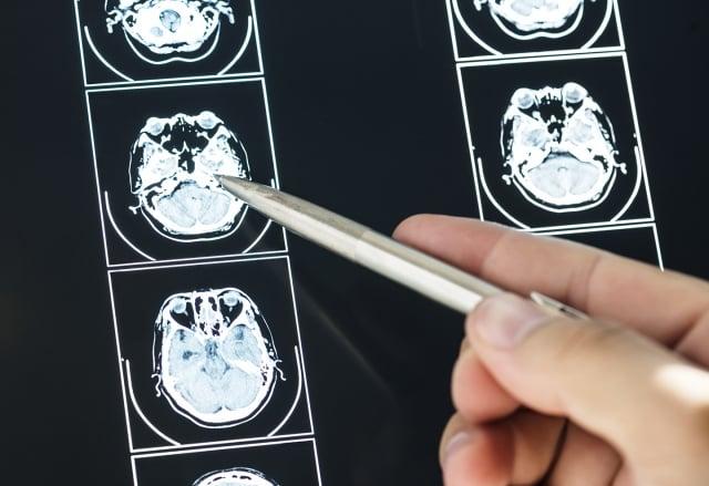 腦腫瘤是因為腦部組織細胞部正常增生為瘤狀物,無論腫瘤是良性或惡性,只要有壓迫到腦部神經組織,就可能對人體運作造成影響。(123RF)