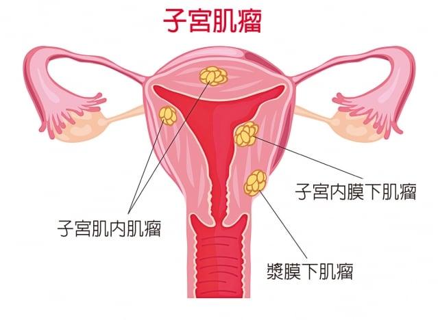 子宮肌瘤屬於中醫「癥瘕」和「崩漏」、「經痛」的範疇。(Fotolia)