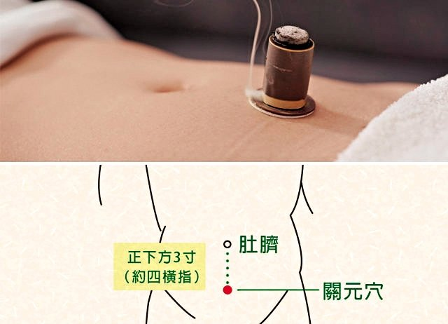 艾灸肚臍或肚臍下方的關元穴,可以改善氣血循環,保養子宮,預防婦科疾病。(大紀元製圖)