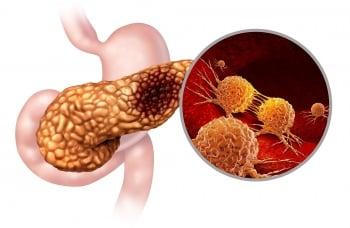 胰腺癌研究獲突破