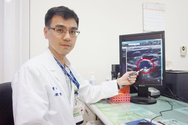 紅色圓圈處為病患頸動脈粥樣硬化性斑塊,如置之不理可能引起缺血性腦中風。