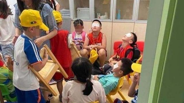 9月1日,浙江一小學誤開紫外線燈5個多小時,致使一百多名學生皮膚和眼睛灼傷。(微博圖片)