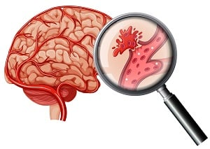 時序即將進入秋冬,義大腦中風中心提醒民眾加強防治腦中風,掌握腦中風徵兆口訣F.A.S.T,及早察覺腦中風徵兆。(123RF)