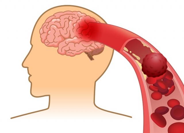 經過腦部斷層檢查後,確定罹患梗塞性腦中風。(123RF)