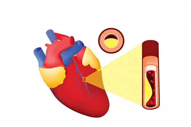 通過極速低劑量電腦斷層檢查發現,心臟血管鈣化指數(CAC)已到120分,代表心臟冠狀動脈已有中度粥狀斑塊鈣化。(Fotolia)