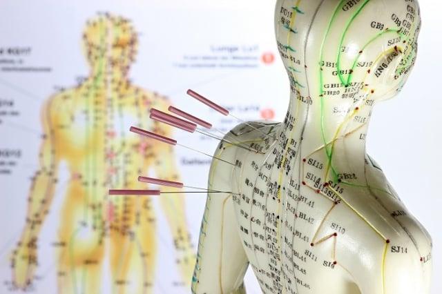 人類社會正是由這些功能性團體交織、管理、運作著。大部分時間,還是井然有序的。中醫看人體也是同理。(123RF)