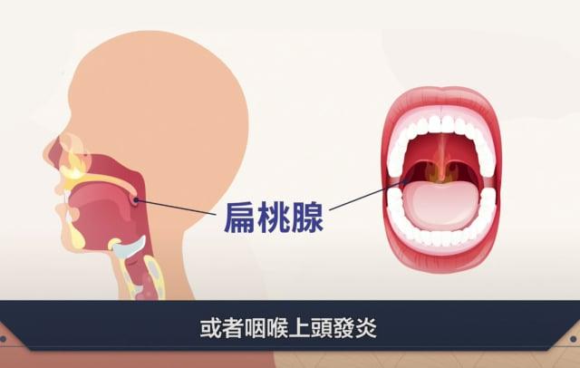 扁桃腺是淋巴組織,有過濾並篩掉病菌、病毒的重要作用。(胡乃文開講)
