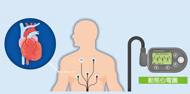 冷凍消融術並非適用於所有心律不整,連續發作7天以上的持續性或永久性心房顫動,可能與慢性心臟病或結構異常有關,而非單純放電異常,需要與醫師討論適切治療方式。 (Shutterstock)