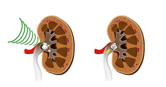 體外震波碎石術療程依結石大小、硬度而定,治療時間約50分鐘,該術式免開刀無傷口、碎石治療後不用住院、治療疼痛感比較低且不用麻醉,是舒適、安全及療效佳的泌尿道結石治療方式。但若泌尿道結石大於2.5公分,不建議使用 體外震波碎石術,必須採行其他手術治療。(123RF)