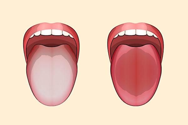 觀看舌頭可以判斷正氣是否充足。(Shutterstock)