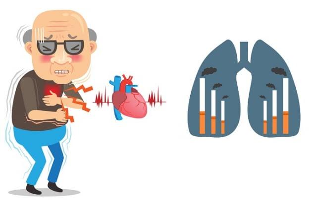 香菸中許多有害物質都會導致全身血管慢性發炎,並使得供應心臟血液的冠狀動脈粥腫樣硬化與狹窄,影響心臟血流供應,尼古丁還會活化交感神經系統並增加心臟負擔,增加心肌梗塞風險。(123RF_大紀元合成)