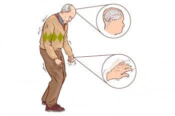 動作過緩非正常老化   小心罹患巴金森氏症