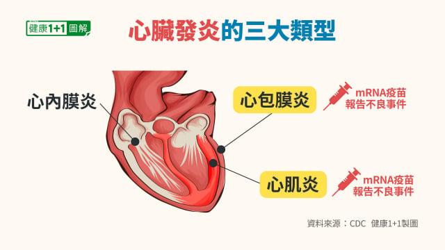 心臟發炎分為心肌炎、心包炎和心臟外膜炎,接種mRNA疫苗後出現的是前兩種。(健康1+1/大紀元提供)