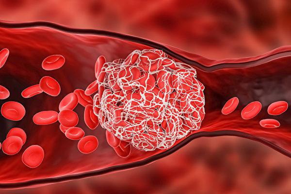Delta變種病毒更容易產生血栓、心肌炎。(Shutterstock)